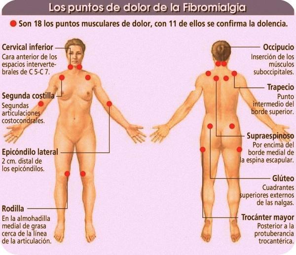 Resultado de imagen para Fibromialgia, de 18 puntos, con 11 de ellos se diagnostica