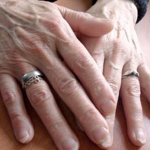 Venas de la mano: ¿cómo solucionar un signo delator de la edad?